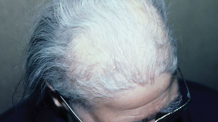 Causes of thinning hair in a postmenopausal woman