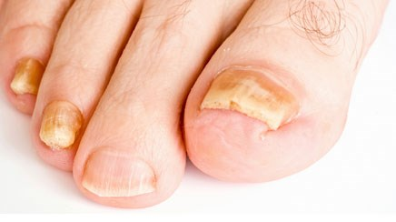 Options for onychomycosis