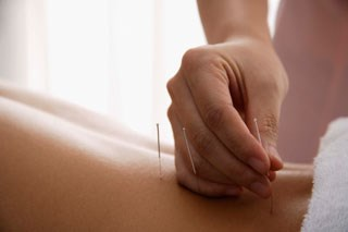 Acupuncture reasonable chronic pain option