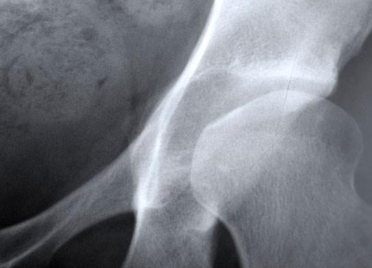 Thyroid hormone and bone density