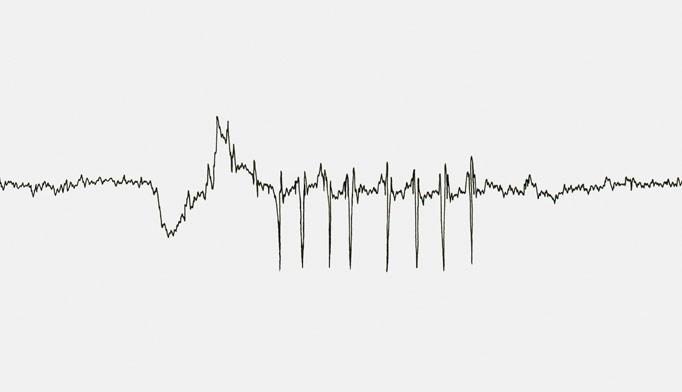 Consider nocturnal seizures when evaluating a patient for parasomnias