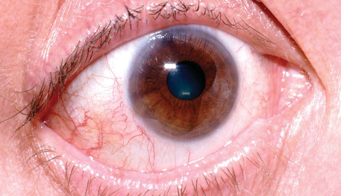 Lymph node clues to conjunctivitis