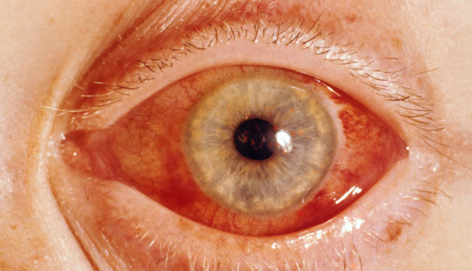 Facts about cataracts