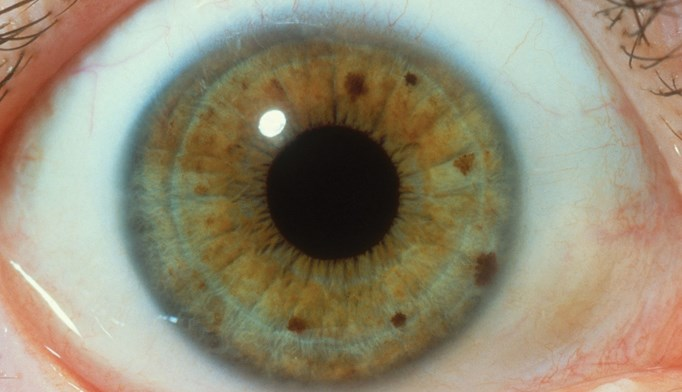 Iridology: Detecting impaired organ function with the iris