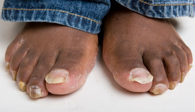 Onychomycosis diagnosis
