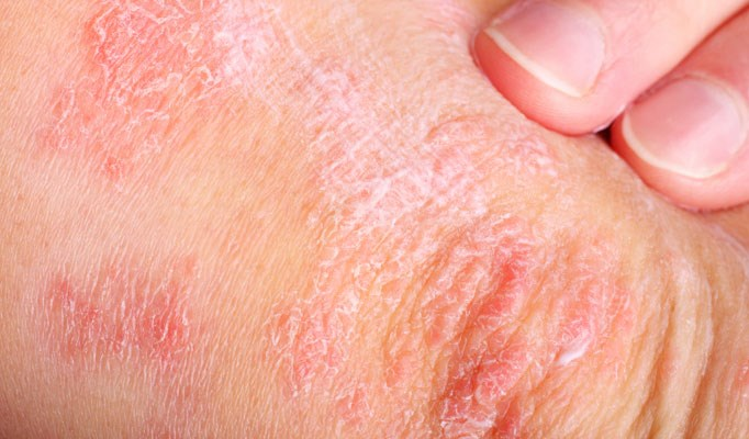 Gluten-free diet or vitamin D supplementation for psoriasis?