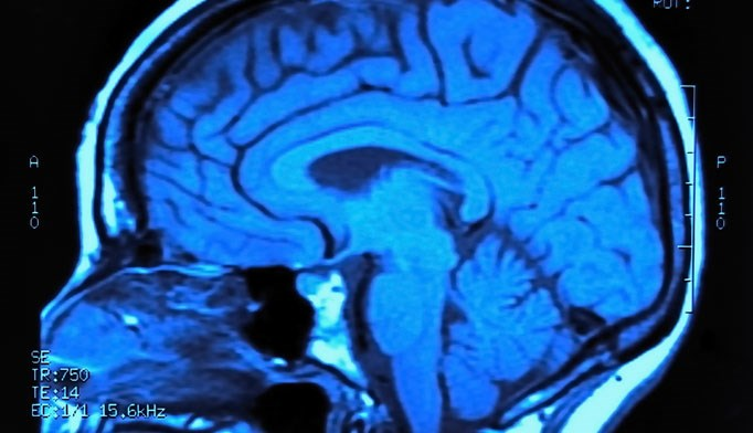 White matter integrity may indicate cognitive impairment in MS
