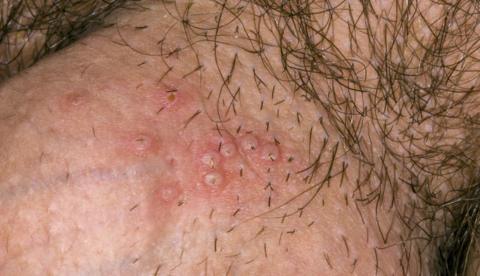 Herpes symptoms can be severe, but most outbreaks are mild 2