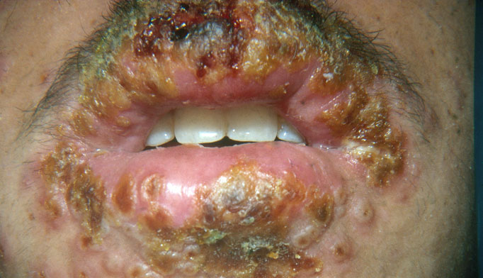 Hsv type 2 is the one that causes the genital infection in most of the cases 2