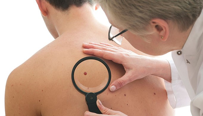 ABCDE criteria not accurate for pediatric melanoma