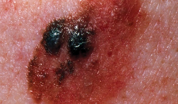 Early diagnosis of ­malignant melanoma