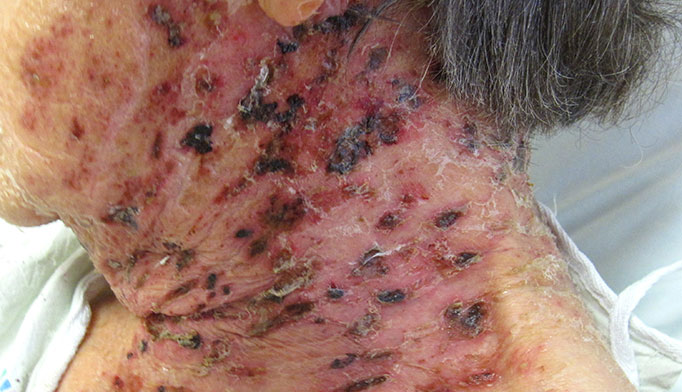 Chicken Pox and Shingles 5 Things We Should   TIMEcom