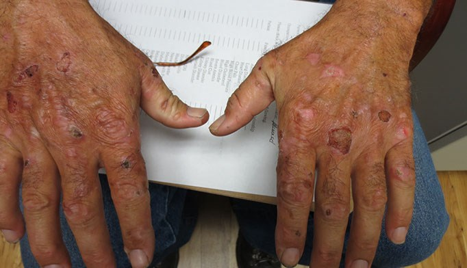 Diagnosing mysterious recurring painful blisters