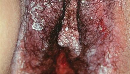 Thickening skin vulva