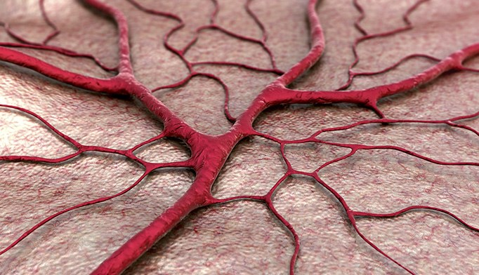 COPD may increase cerebral microbleed risk
