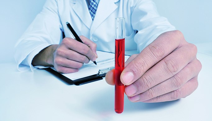 Anemia may raise stroke risk for some