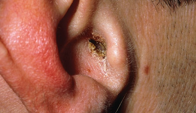 Treating antifungal-resistant ear infection