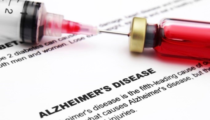 Blood test may predict Alzheimer disease
