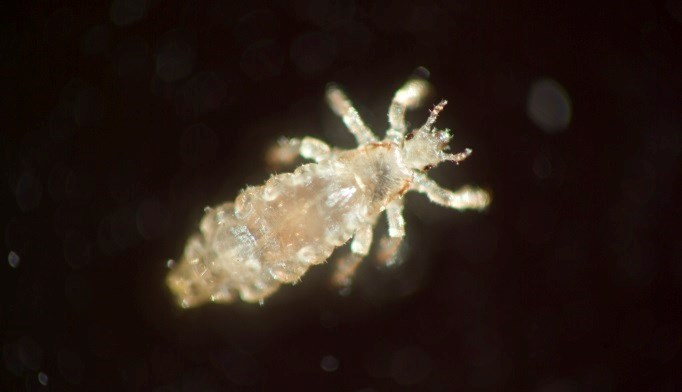 Resistant strain of head lice widespread in North America