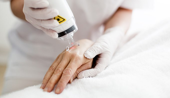 Laser therapy plus topical effective for generalized plaque psoriasis
