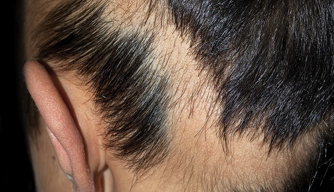 Topical immunotherapy for alopecia areata