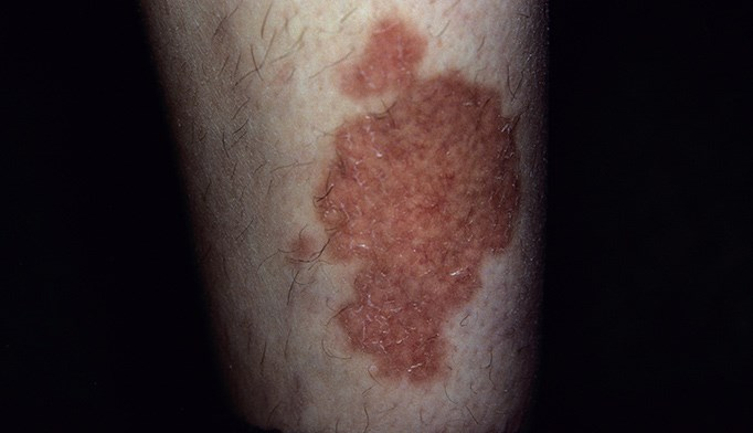 A spreading rash on the shins: Skin problem or systemic disease?