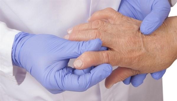 Increased Insulin Resistance in Rheumatoid Arthritis Not Linked to Atherosclerosis