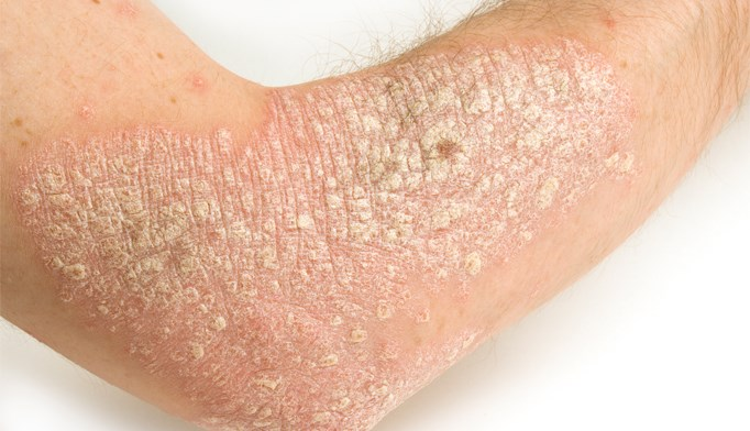 Psoriasis incidence greater than previously thought