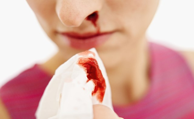 Epistaxis: the common and not-so-common nosebleed - The Clinical ...