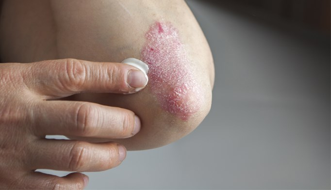 WHO recognizes psoriasis as chronic condition