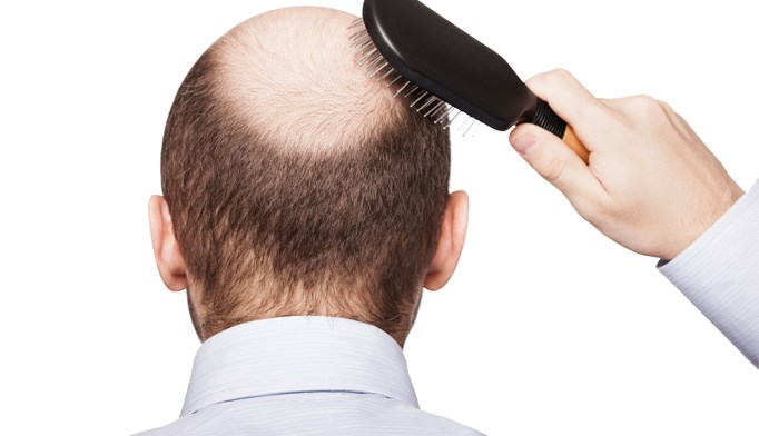 Cancer drug may restore hair in alopecia patients
