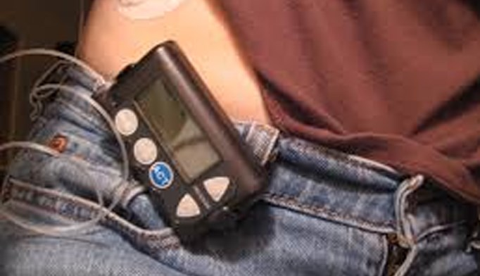 Insulin pump therapy reduces all-cause mortality in T1DM.