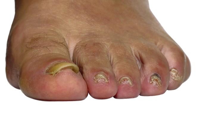 Could nail involvement predict psoriatic arthritis?
