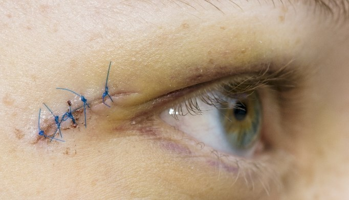 Try absorbable sutures for facial lacerations
