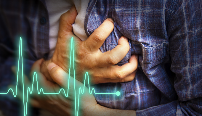 Early signs of plaque in arteries up myocardial infarction risk