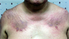 Derm Dx: Itchy rash on eyelids, chest, back, and hands