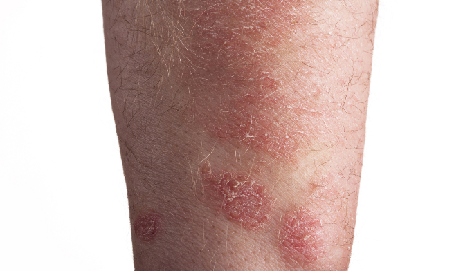 biologics may up fungal infection risk in patients with psoriasis, Skeleton