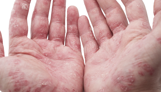 Psoriasis and psoriatic arthritis increase cardiovascular risks.