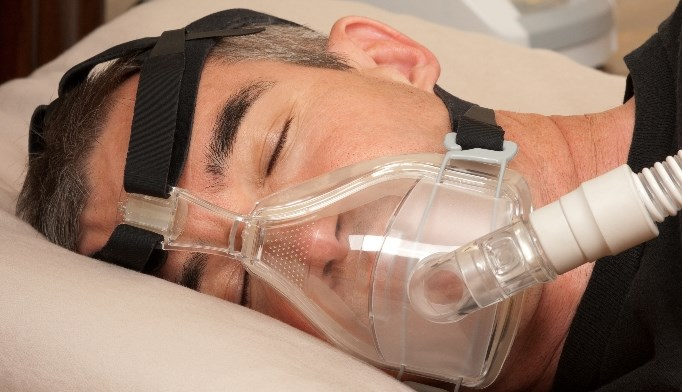 Obstructive sleep apnea: 
