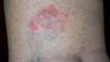 Derm Dx: Erythematous, raised plaque on calf
