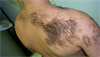 Derm Dx: Coarse hairs on the back, shoulder