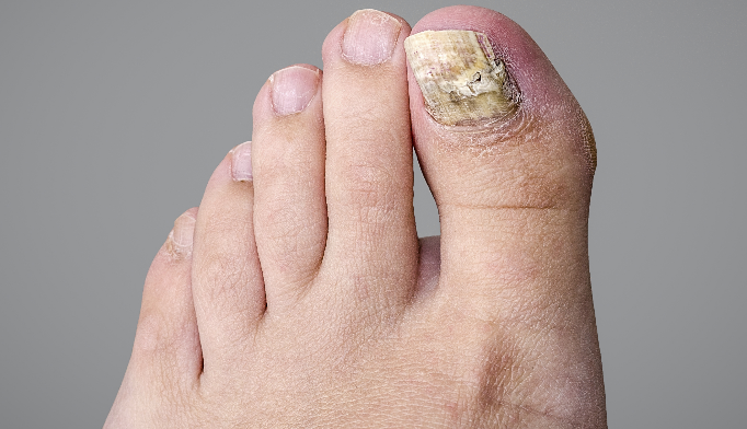 All patients should be evaluated for onychomycosis