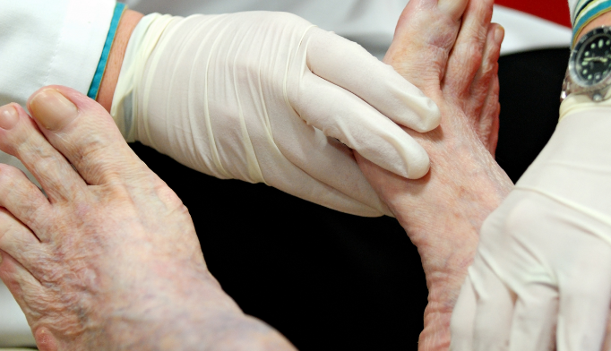 Inflamed foot in a patient with diabetes