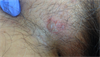 Derm Dx: Itchy rash on the groin