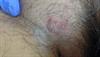 Derm Dx: Itchy rash on the groin