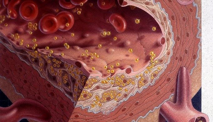 Excessive cholesterol in bloodstream (shown in illustration) can lead to atherosclerotic CVD.