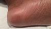 Derm Dx: Severe pain, redness in heels after cytarabine treatment