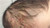 Derm Dx: Worsening scalp, axillae rash in an infant