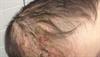 Derm Dx: Worsening scalp, axillae rash in an infant