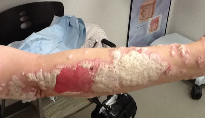 Psoriasis: When the 'usual suspect' therapy works